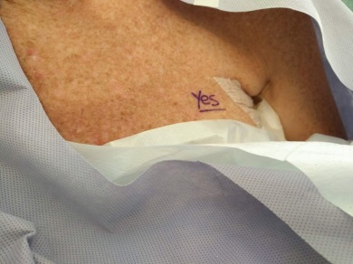 First surgery marked so they don't biopsy the wrong breast